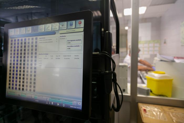 Los nuevos equipos de diagnóstico permiten superar las 10.000 pruebas diarias en la región