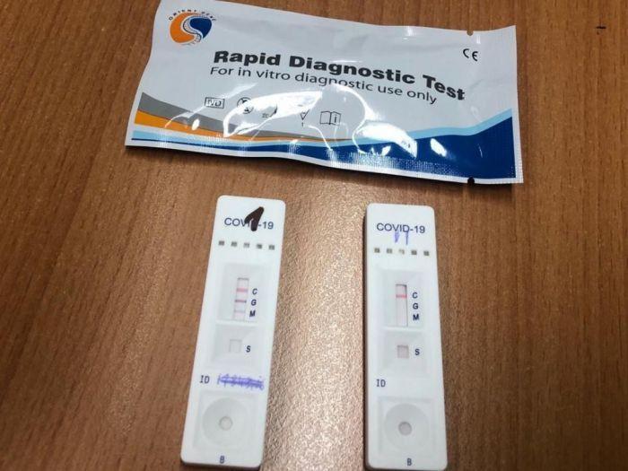 Test rápidos para detección de coronavirus